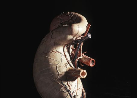 Papier-mâché model of a human stomach, possibly Shimadzu Manufacturing, Japan, possibly 1914—19. Powerhouse Collection.