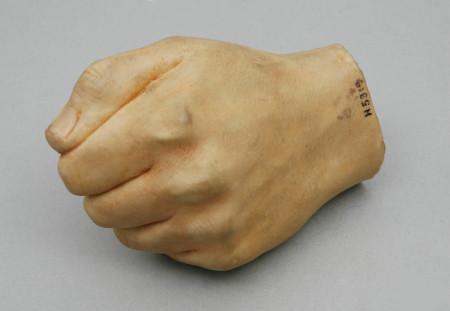Polyvinyl prosthetic hand, prepared by Mr. Gordon Hunnings, Nottingham General Hospital, UK,1954