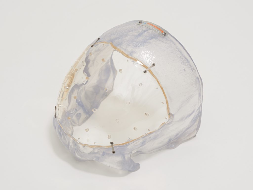 Medical device, 3D printed skull implant